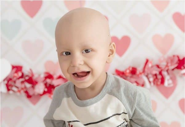 Image of a  Bald Little Boy at a Valentine's Party